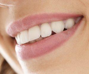 blanqueamiento dental en porriño